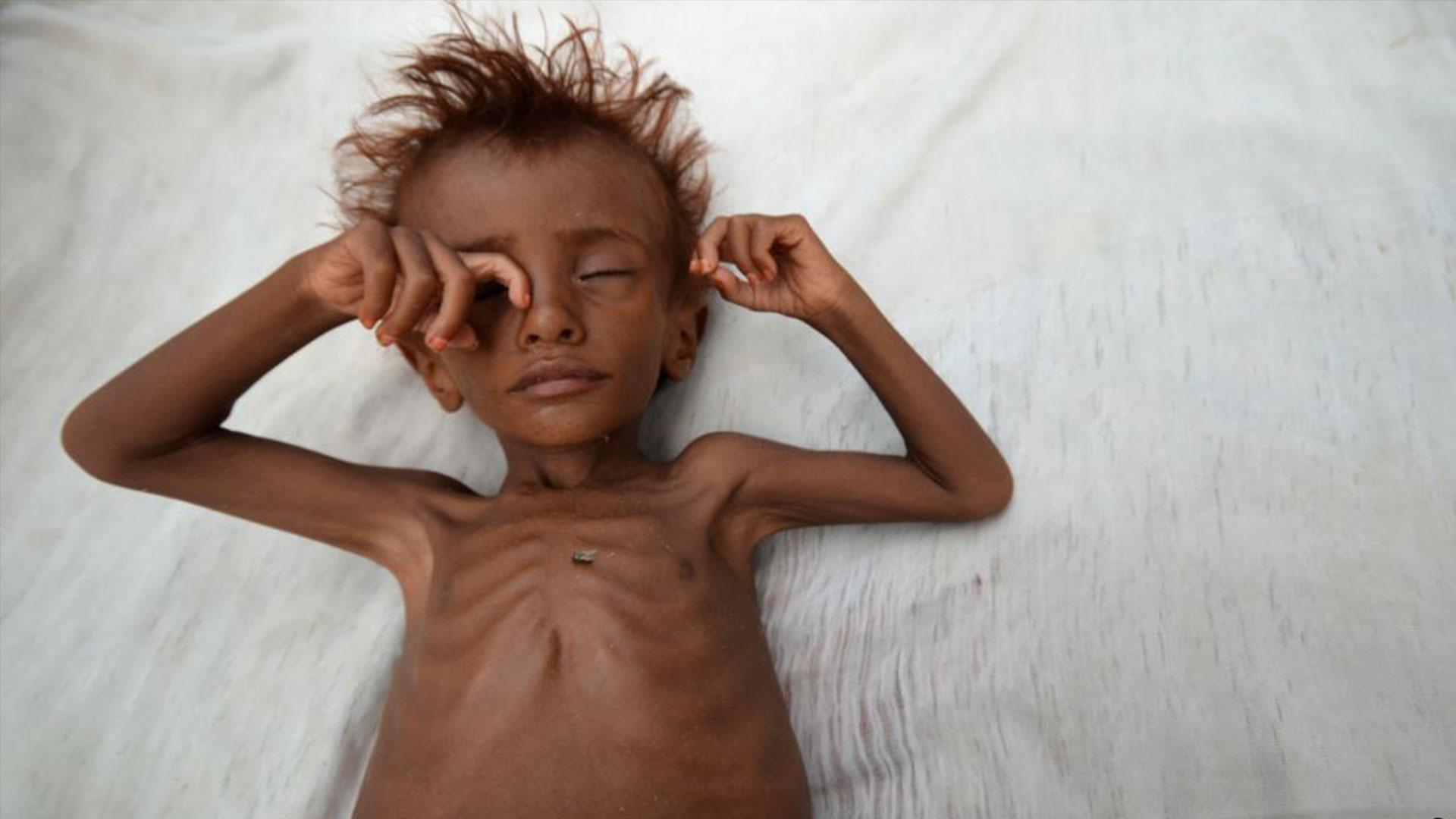 Yemen Crisis Appeal 2017 2018