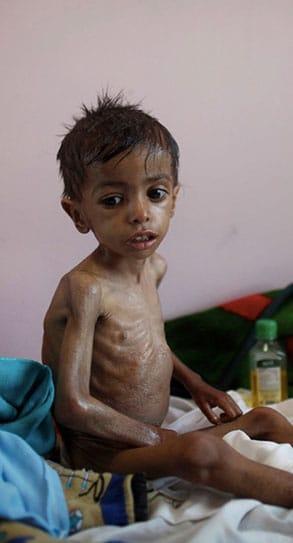 Yemen-Crisis