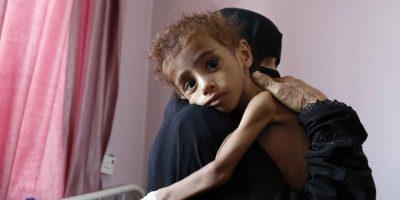 Yemen Humanitarian Crisis - Update