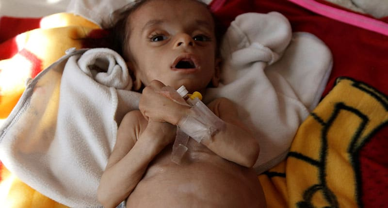 Yemen Emergency Appeal 2020